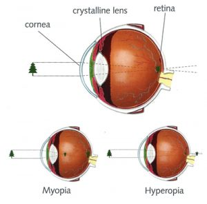 cataracts information